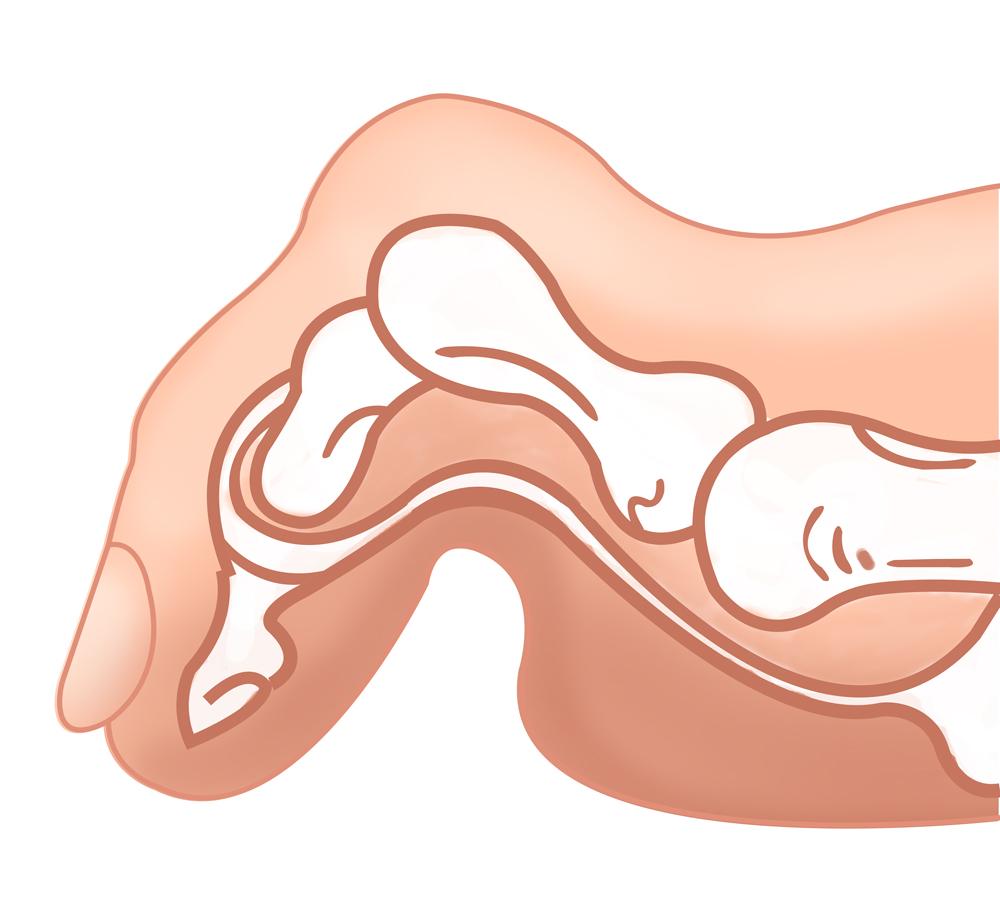 Искривления пальцев ног