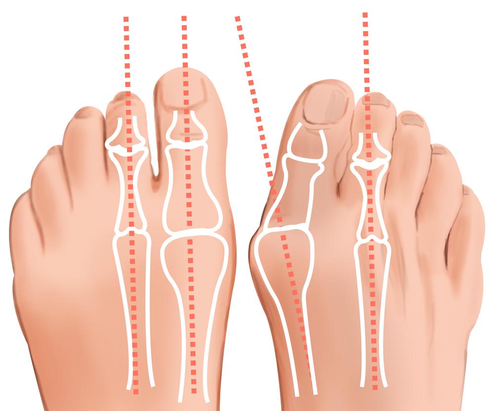Косточки или Шишки на ногах